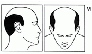 Stage six of male hair loss