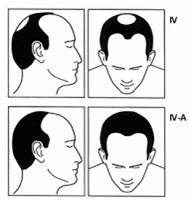 Stage four of male hair loss