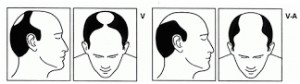 Stage five of male hair loss